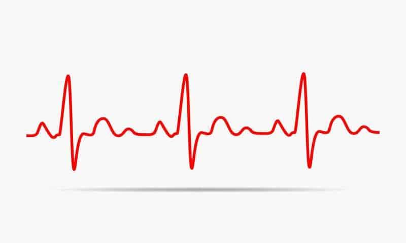 How to Optimize WordPress Heartbeat API Without A Plugin - SERT Media